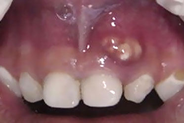 Tratamento De Canal No Dente De Leite Sim Isto Pode Ser Necessario